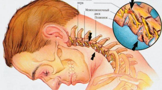 Болит шея и выше