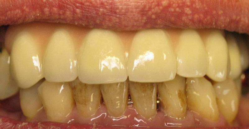 паста для отбеливания зубов