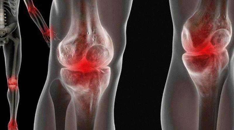простые средства от боли в суставах