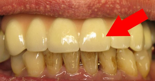 сколько стоит отбеливание зубов в украине