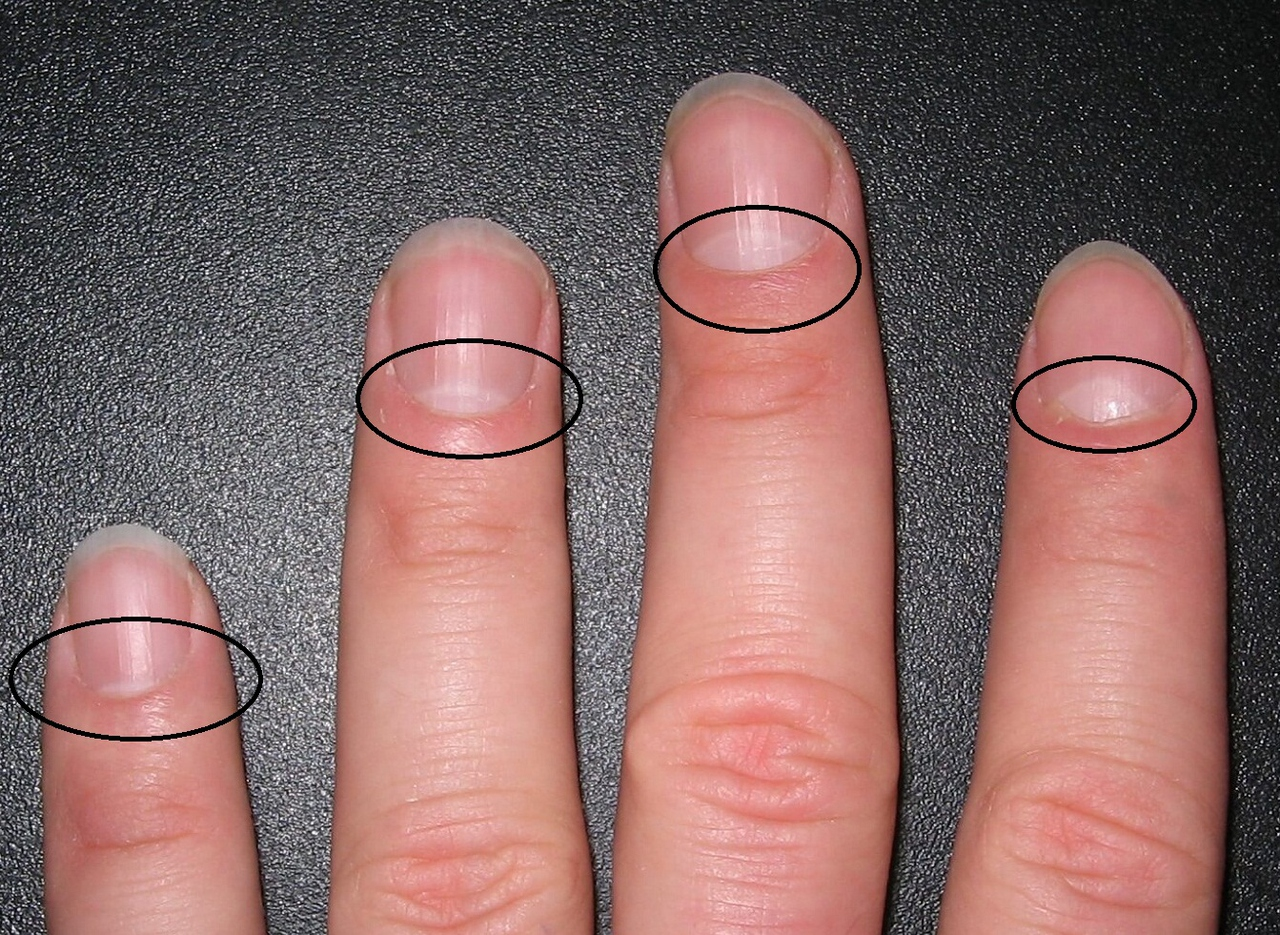 """Do you have a """"crescent"""" on your nails? Find Out What This Indicates … Curious Information."""