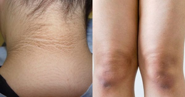 I was embarrassed to wear short-sleeved clothes because of the black elbows. She was surprised when she saw the effect of this remedy!