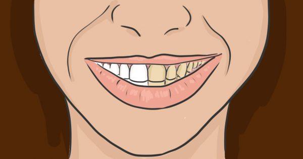 отбеливание зубов перед протезированием