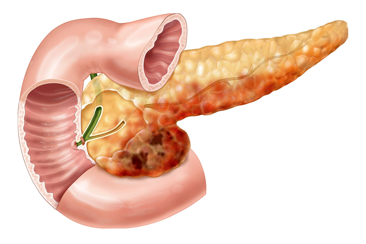 Early and unexpected signs of pancreatitis and pancreatic cancer