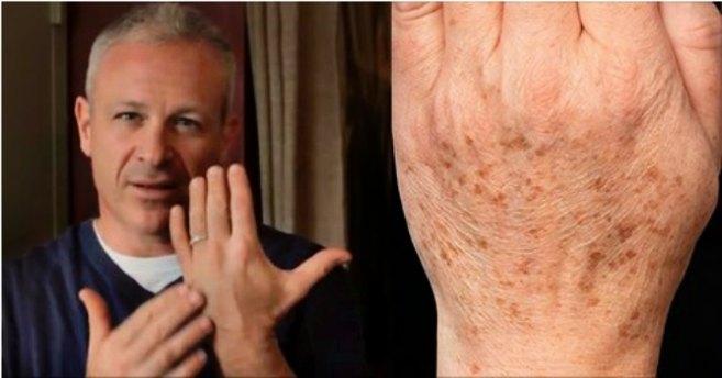 Американский доктор рекомендует: простой способ быстро устранить пигментные пятна на коже. Всего 2 ингредиента!