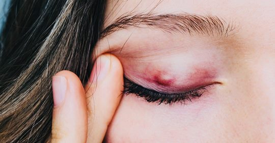 8 признаков ячменя на глазах Вы должны это знать!