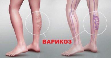 Варикоз: симптомы и лечение болезни