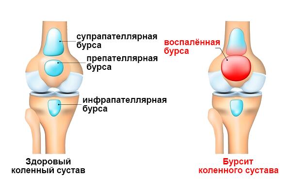 Стоимость лечения болезни бехтерева в москве